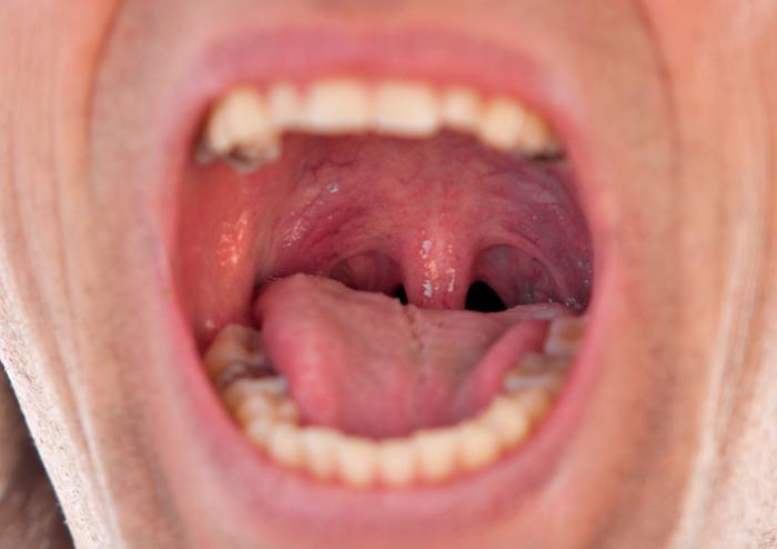 Luette enflée (uvulite)