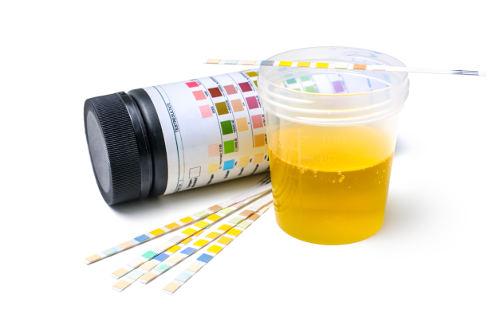Odeur d'ammoniac dans l'urine