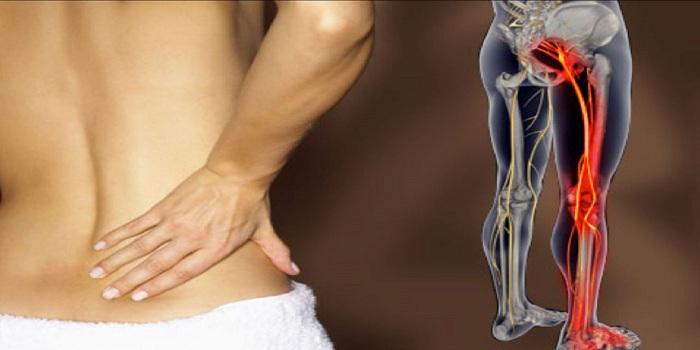 astuces pour sortir de la douleur du nerf sciatique