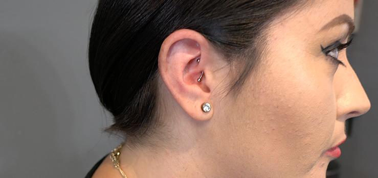 daith piercing guérison et douleur