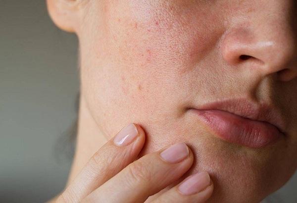 remèdes pour rétrécir minimiser les pores naturellement