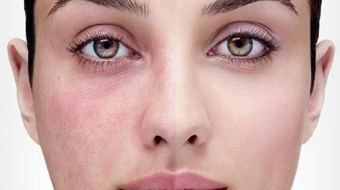 se débarrasser des rougeurs sur le visage